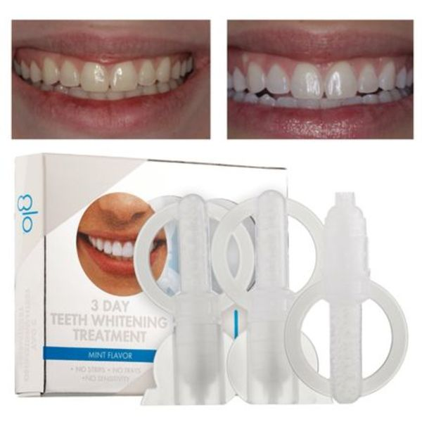 GLO Science ホワイトニング 3 Day Teeth Whitening Treatment